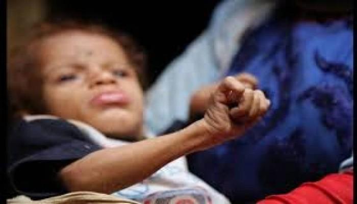 11 مليون طفل يعانون من سوء التغذية الحاد