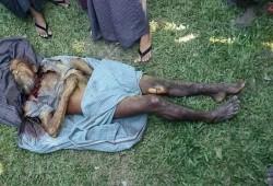 حرق مسنّ روهينجي بعد تعذيبه على يد متطرفين بوذيين