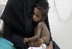 الأمم المتحدة: مليون حالة يمنية يشتبه إصابتها بالكوليرا