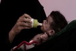 الصحة العالمية: القطاع الصحي في اليمن يتدهور