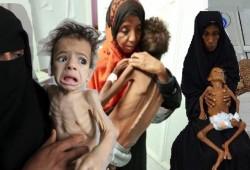 """""""برنامج الأغذية العالمي"""": اليمن أكبر أزمة إنسانية في العالم"""