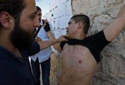 ألمانيا تمدد اعتقال طبيب سوري موالِِ للنظام قتل وعذّب معتقلين