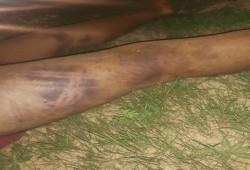 حوادث متكررة.. العثور على جثث مصريين بها آثار تعذيب شرقي ليبيا