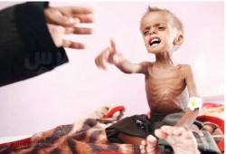 اليمن.. الأطفال في خطر والأمم المتحدة تطلب مليارات لتفادي مجاعة واسعة