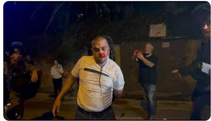 الاحتلال الصهيوني يصيب 10 مقدسيين لدى فض اعتصام ضد طردهم